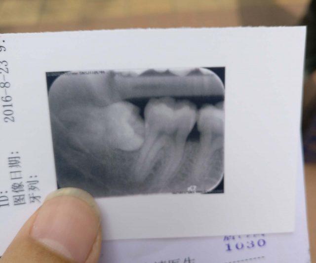 牙齿X光照片